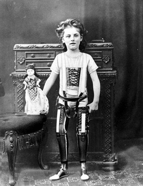 27-bambina con gambe artificiali