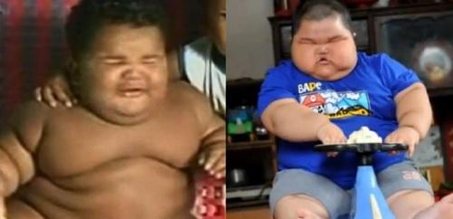 bambino obeso