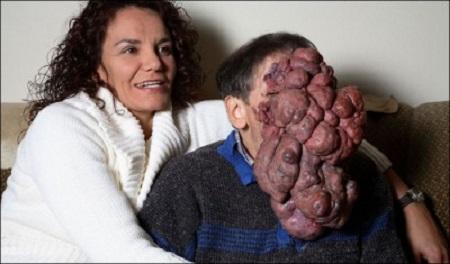tumore faccia