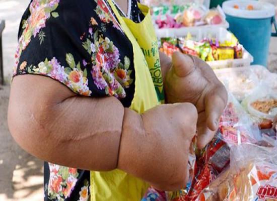 Duangjay Samaksamam, la donna con le mani più grandi del mondo