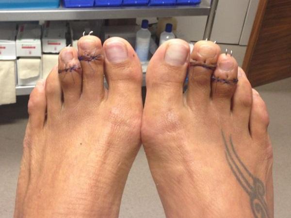 dita piedi operate