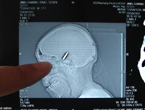 polonia 5 anni pallottola in testa