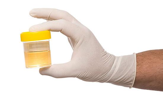 urina bioenergy bristol