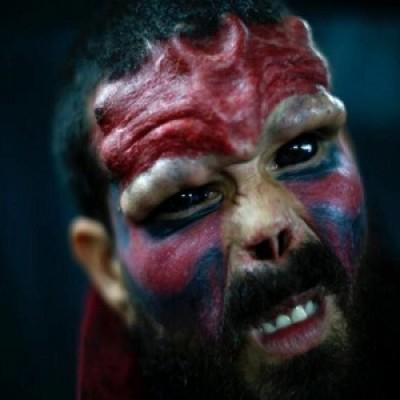 Il ragazzo che si è fatto rimuovere il naso per somigliare a teschio rosso