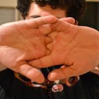 Scrocchiarsi le dita fa male?
