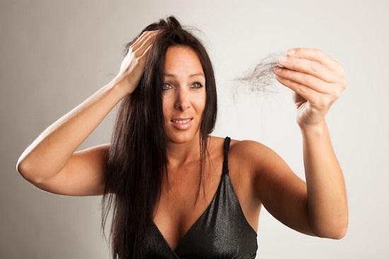sintomi alopecia donne