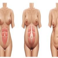 Addominoplastica, miniaddominoplastica e liposuzione