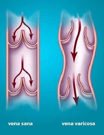 Restringersi di vene su una gamba