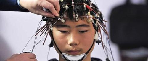 stimolazione cerebrale