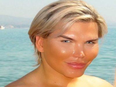Rodrigo Alves, uomo bambola che si è sottoposto a 58 interventi di chirurgia plastica per assomigliare a Ken