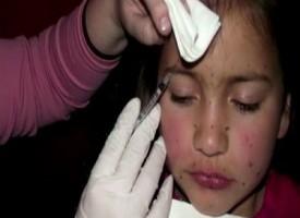 """Iniezioni di botox a sette anni """"Mia figlia sarà una star"""""""