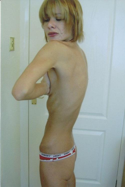 danni anoressia