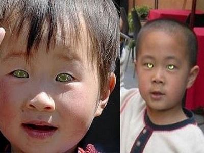 Nong Youhuis Il Bimbo Che Vede Nel Buio Come Un Gatto Curiosità E