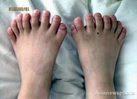 Chi Lin: il bambino cinese con 31 dita
