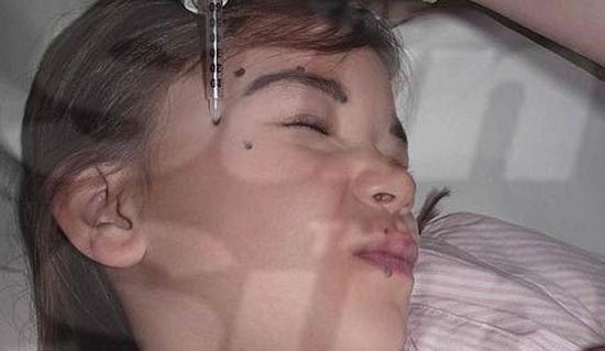 bimba-con-botox