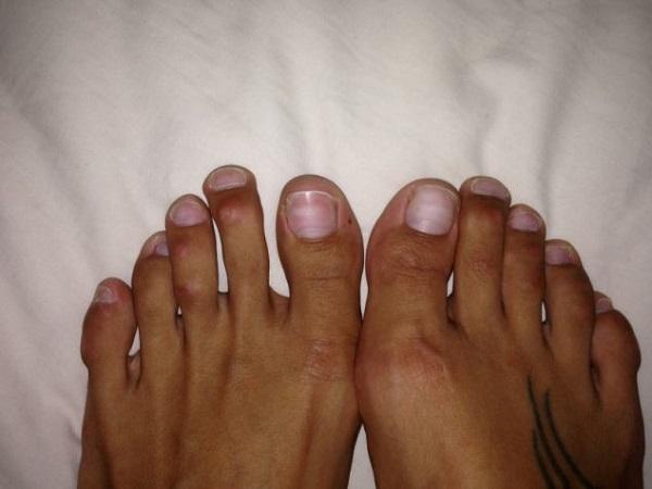 dita piedi donne operate