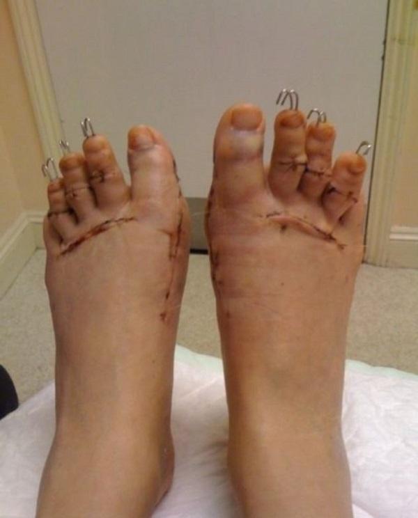 dita piedi operate per tacchi