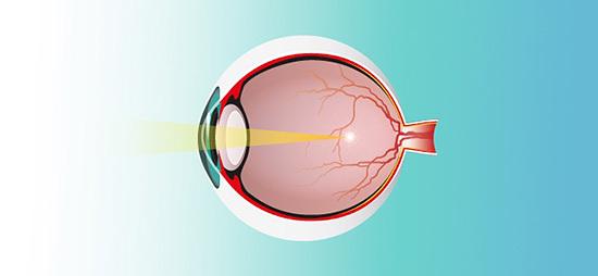 occhio e miopia