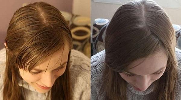 rimedi naturali per i capelli