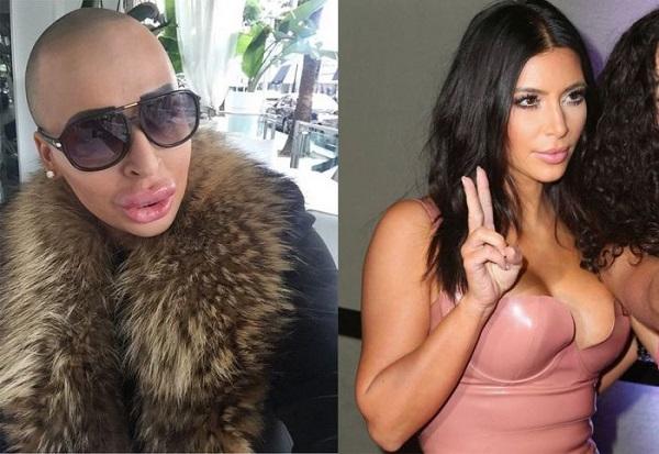 operazione chirurgica kardashian kim