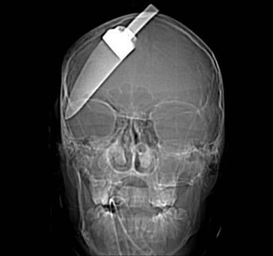 coltello cranio