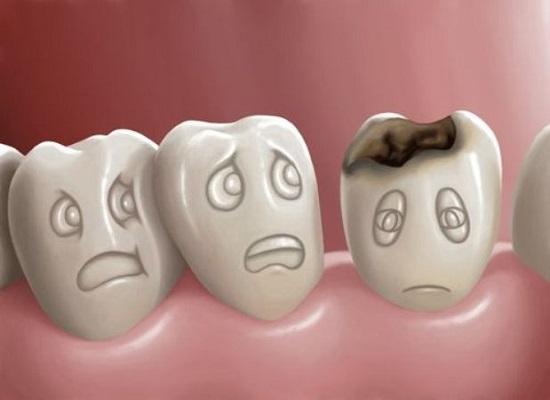 denti sani cura alimentazione