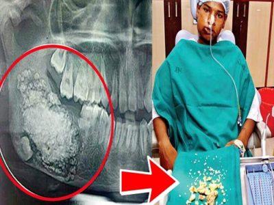 Va in ospedale per forti dolori alla bocca e scopre di avere 232 denti